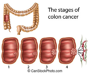 Colon cancer - Stages of colon cancer, eps8,
