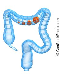3d rendered anatomy illustration of human colon with carzinoma