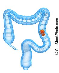 colon cancer - 3d rendered illustration of carzinoma in...