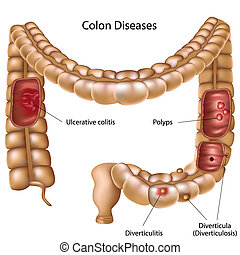 Colon pathologies, eps8