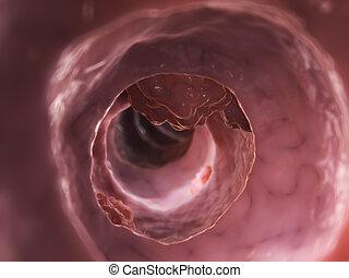 Colon tumor - 3d rendered illustration of a colon tumor