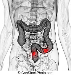 Colon tumor - 3d rendered scientific illustration of a colon...