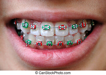 braces in green and red color