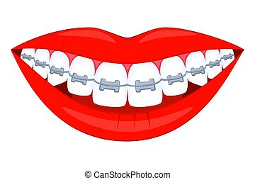 Colorful cartoon healthy smile in braces. Achieving...