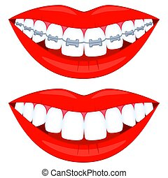 Colorful cartoon teeth aligning elements set. Before and...