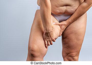 éget comb kövér nőstény