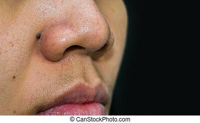 comedones, bha, femme, femelle asiatique, peau, besoin, taupe, blackheads, co2, aha, acné, derrière, noir, nose., cause, hormone, mustache., peroxide., benzoyl, excès, removal., laser, pores, grand nez, mâle, ou