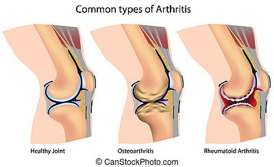 Common types of arthritis - Knee anatomy with arthritis,...