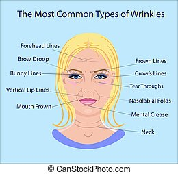 Common Types of Facial Wrinkles. cosmetic surgery. woman...
