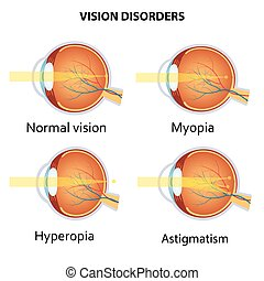 Common vision disorders. Astigmatism, Myopia and Hyperopia