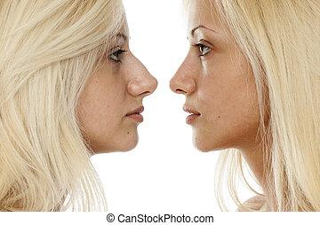 comparación, cirugía, nariz
