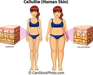 comparaison, cellulite, femmes