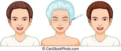 comparaison, injection, botox, femme