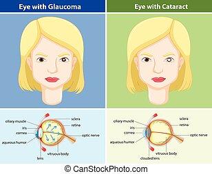 comparaison, yeux, glaucome, diagramme, sans