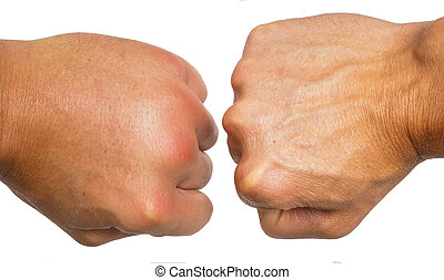 Comparing swollen male hands isolated towards white...