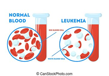 Comparison between normal blood and leukemia. Dangerous ...