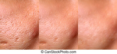 Comparison of skin before and after laser resurfacing. Skin ...