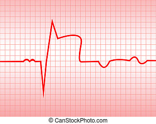 Complex of ECG on thermal paper, acute myocardial infarction...