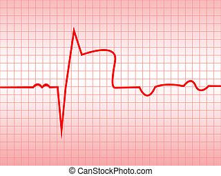 Complex of ECG on thermal paper, acute myocardial...