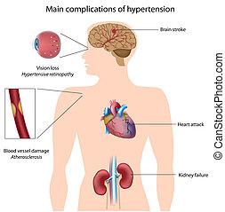 complications, közül, magas vérnyomás, eps8
