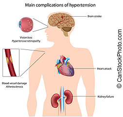 Complications of hypertension, eps8 - Diagram showing...