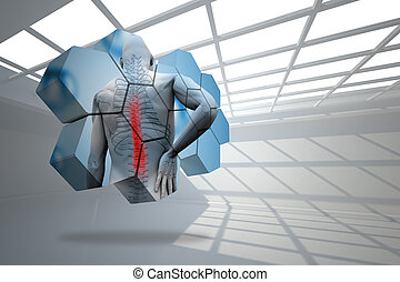 Composite image of back injury diagram on abstract screen -...