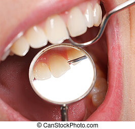 comprehensive, בחינה של השיניים