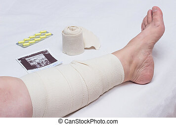 Compression therapy for varicose veins in a woman's legs, treatment of varicose veins with an elastic bandage, compression knit, impaired blood flow, vascular
