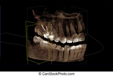 Computer tomogram of the dentition - 3D visualization of a ...