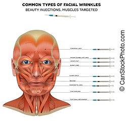 comum, pregas, tratamento facial, tipos