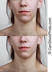 conceito, acne, jovem, tratamento, mulher, pele, antes de, closeup., após, cuidado