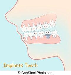 conceito, implants, dente