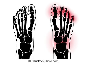 conceito, pé, artrite