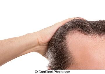 concept, alopécie, isolé, closeup, blanc, naissance cheveux, fuyant, homme