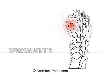 concept, bannière, continu, ligne, rhumatoïde, dessin, arthrite