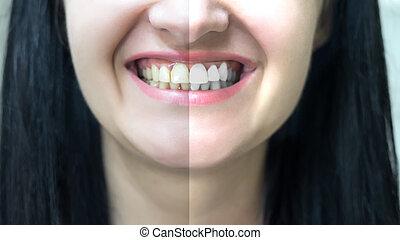 concept, blanchir, dents