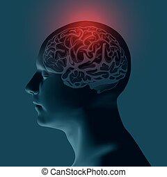 concept, migraine, -, illustration, vecteur, healthcare