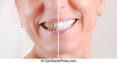 Concept of before and after teeth cleaning and whitening treatment