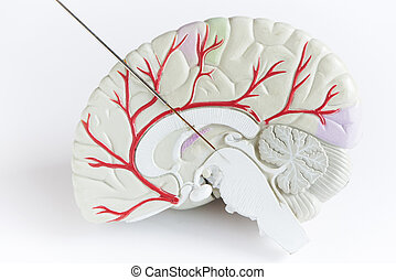 Concept of brain wave recording in Parkinson disease surgery.