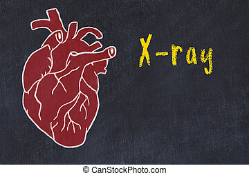 Concept of learning cardiovascular system. Chalk drawing of human heart and inscription X-ray