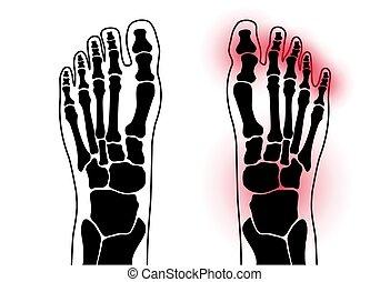 concept, pied, arthrite