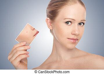 concept, skincare, ., huid, van, beauty, jonge vrouw , vóór en na, de, procedure, op, een, grijze achtergrond