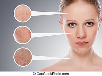 concept skincare. Skin of beauty young woman before and after the procedure on a gray background