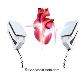 Conceptual image of the model heart and the discharge of defibrillation on a white background. 3d illustration