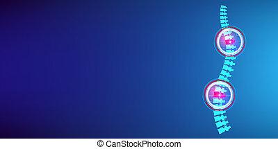 concetto, arte, astratto, infographic, disegno, raggi x, template., disco, creativo, fondo., trattamento, lesione, dolore, collo, illustrazione, bandiera, grafico, spina, medico, degradazione, elemento, sanità