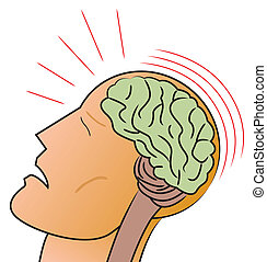 A stylized depiction of a man receiving a traumatic head injury or concussion.