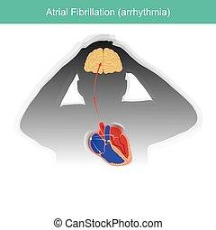 condition, rhythm., signaux, coeur, fibrillation., atrial, ...