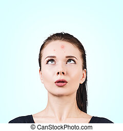 Confused girl with acne on her forehead