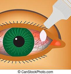 conjunctivitis., 目, illustration., infographics., drops., ベクトル, 炎症, 赤み, vessels., eye.
