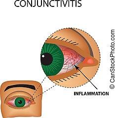 conjunctivitis., 隔離された, イラスト, 炎症, infographics., ベクトル, 容器, 背景, 赤み, eye.